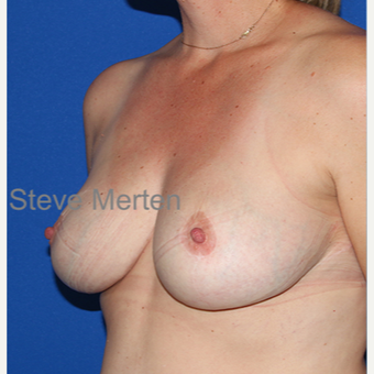 35-44 year old woman treated with Breast Reduction after 3432355