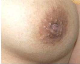 25-34 year old woman treated with Nipple Surgery 3099877