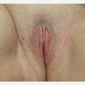 Labiaplasty after 2569623
