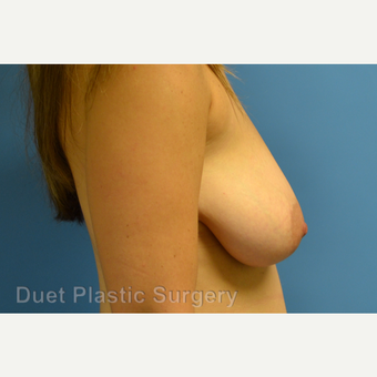 35-44 year old woman treated with Breast Reduction before 3350298
