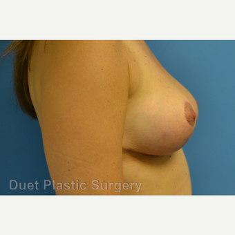 35-44 year old woman treated with Breast Reduction after 3350298