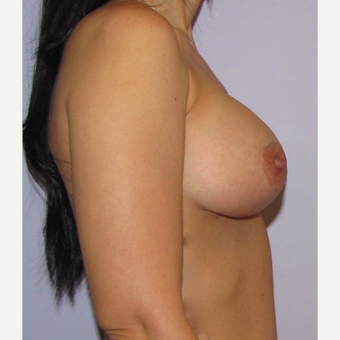 34 year old woman had breast augmentation with 360 cc high profile saline Breast Implants after 3467886
