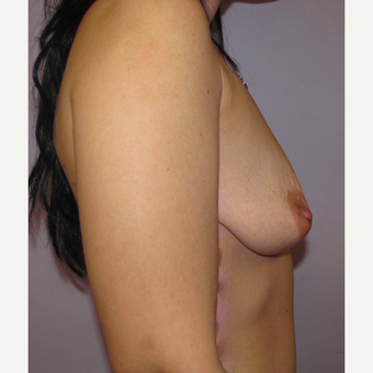 34 year old woman had breast augmentation with 360 cc high profile saline Breast Implants before 3467886