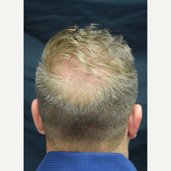 25-34 year old man treated with FUE Hair Transplant after 3213798