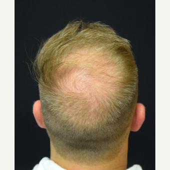 25-34 year old man treated with FUE Hair Transplant before 3213798