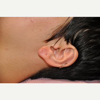 18-24 year old woman treated with Ear Lobe Surgery after 3059782
