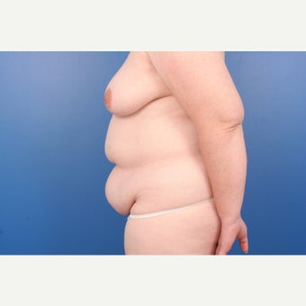 35-44 year old woman treated with Breast Reconstruction 1671458