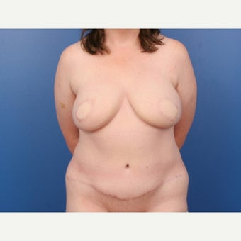 35-44 year old woman treated with Breast Reconstruction after 1671458
