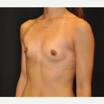 Breast Augmentation before 3007787