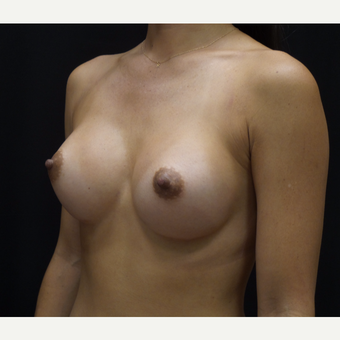 Breast Augmentation after 3007787