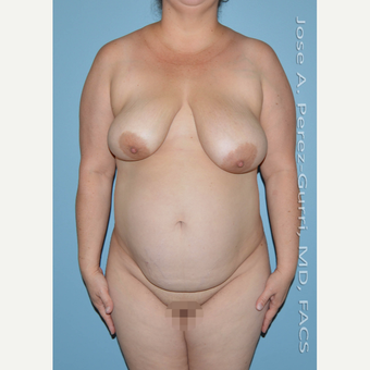 35-44 year old woman treated with Mommy Makeover before 3056488