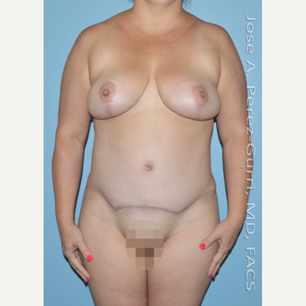 35-44 year old woman treated with Mommy Makeover after 3056488