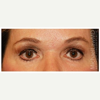 45-54 year old woman treated with Eye Bags Treatment after 1554463