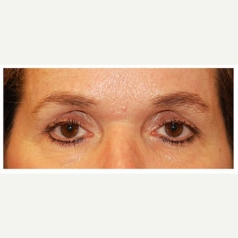 45-54 year old woman treated with Eye Bags Treatment before 1554463