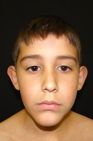 10 y/o Male treated with otoplasty