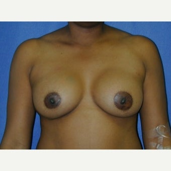35-44 year old woman, weight 125-135 lbs,  treated with Breast Augmentation after 1711642