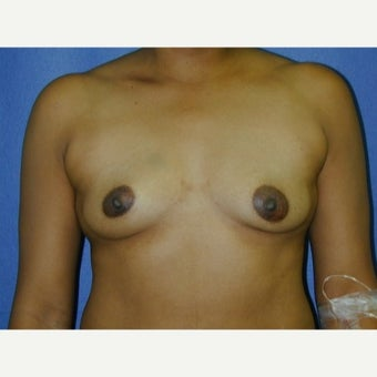 35-44 year old woman, weight 125-135 lbs,  treated with Breast Augmentation before 1711642