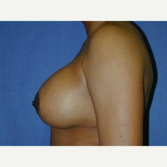 35-44 year old woman, weight 125-135 lbs,  treated with Breast Augmentation 1711642