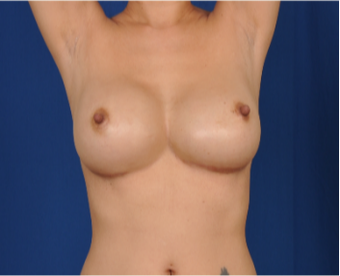 35-44 year old woman treated with Breast Implant Revision after 3618386