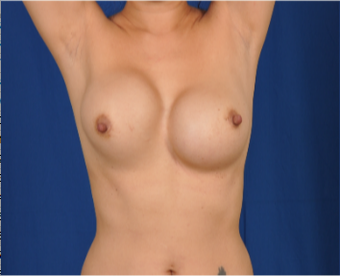 35-44 year old woman treated with Breast Implant Revision before 3618386
