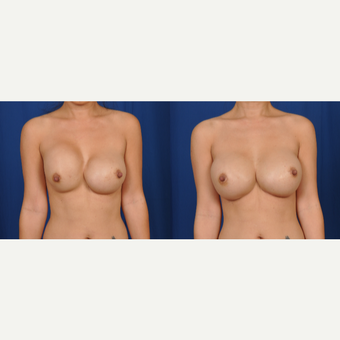 35-44 year old woman treated with Breast Implant Revision 3618386