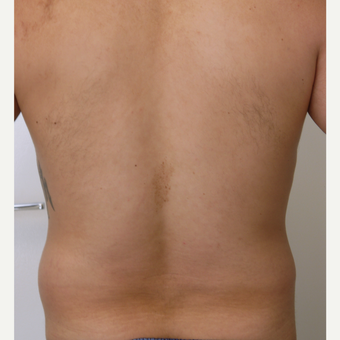25-34 year old man treated with Liposculpture before 3782983