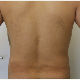25-34 year old man treated with Liposculpture after 3782983