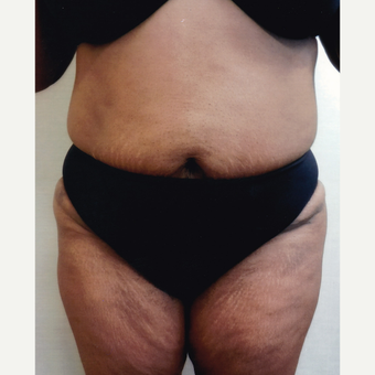 45-54 year old woman treated with Liposuction after 3577379