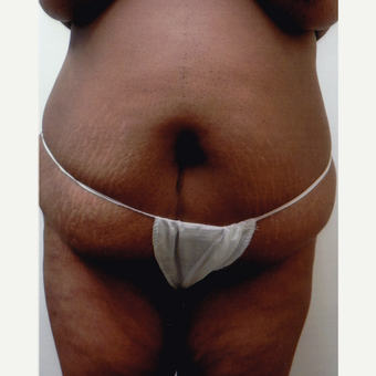 45-54 year old woman treated with Liposuction before 3577379