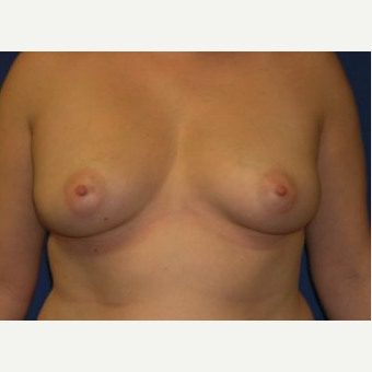 45-54 year old woman treated with Breast Augmentation before 3220003