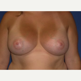 45-54 year old woman treated with Breast Augmentation after 3220003