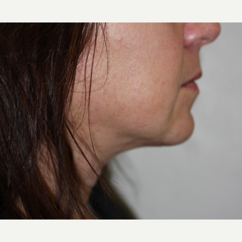 45-54 year old woman treated with SmartLipo MPX after 3706392