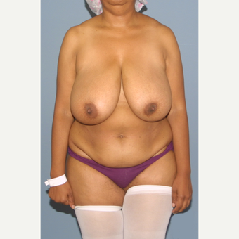 45-54 year old woman treated with Mommy Makeover before 3557861