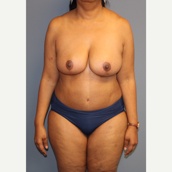 45-54 year old woman treated with Mommy Makeover after 3557861