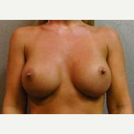 25-34 year old woman treated with Breast Implants after 3108982
