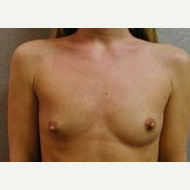 25-34 year old woman treated with Breast Implants before 3108982