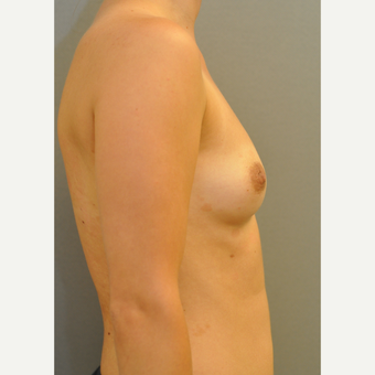 25-34 year old woman treated with Breast Implants before 3843079