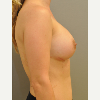 25-34 year old woman treated with Breast Implants after 3843079