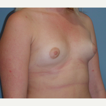 18-24 year old woman treated with Breast Augmentation before 3059659