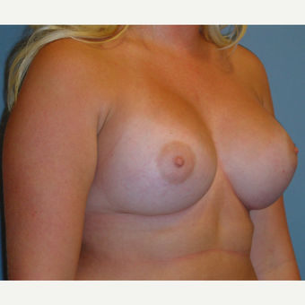 18-24 year old woman treated with Breast Augmentation after 3059659