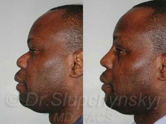 32 year old African American Male - Rhinoplasty before 987246