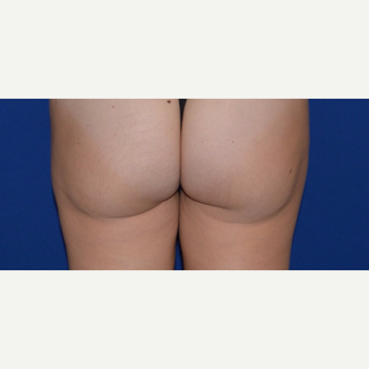 "25-34 year old woman treated with Smart Lipo of Inner Thighs for ""Thigh Gap"" before 3661035"