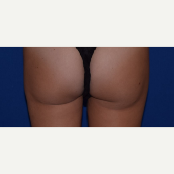"25-34 year old woman treated with Smart Lipo of Inner Thighs for ""Thigh Gap"" after 3661035"