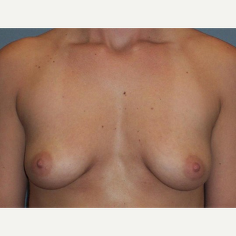 Breast Augmentation before 3560756