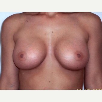 Breast Augmentation after 3560756