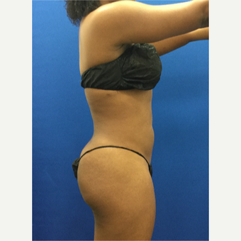 25-34 year old woman treated with Liposuction after 3142214