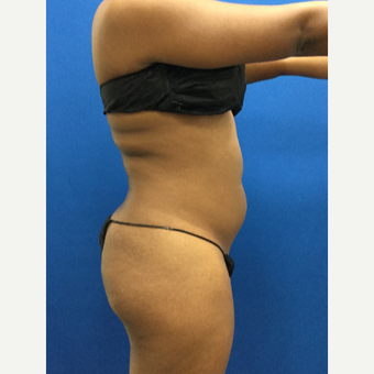25-34 year old woman treated with Liposuction before 3142214