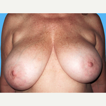 Breast Reduction before 3809920