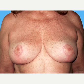 Breast Reduction after 3809920