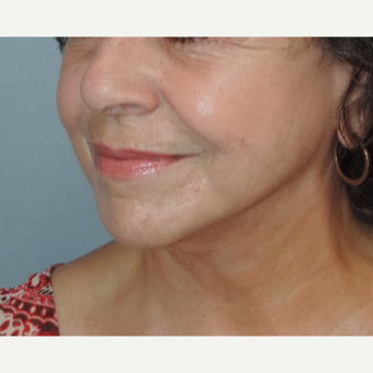 65-74 year old woman treated with Facelift after 3483132